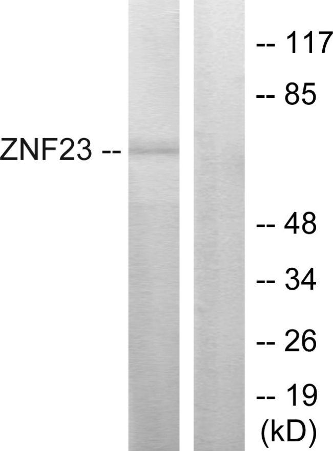 ZNF23 Antibody (PA5-38581) in Western Blot