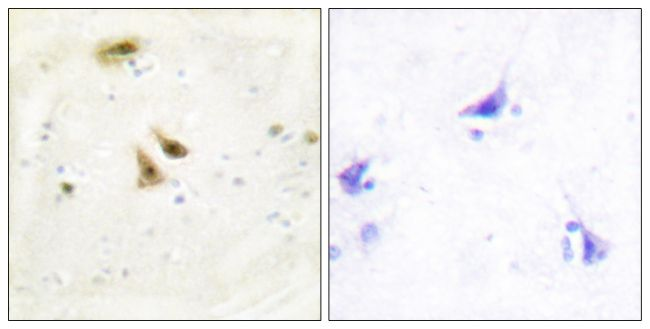 UBF-1 Antibody (PA5-38585)