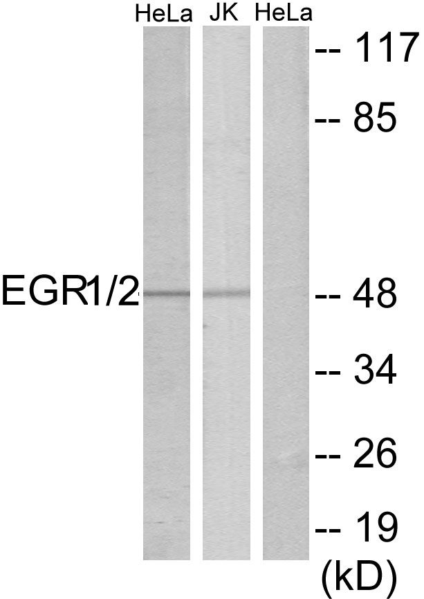 EGR1/EGR2 Antibody (PA5-38588)