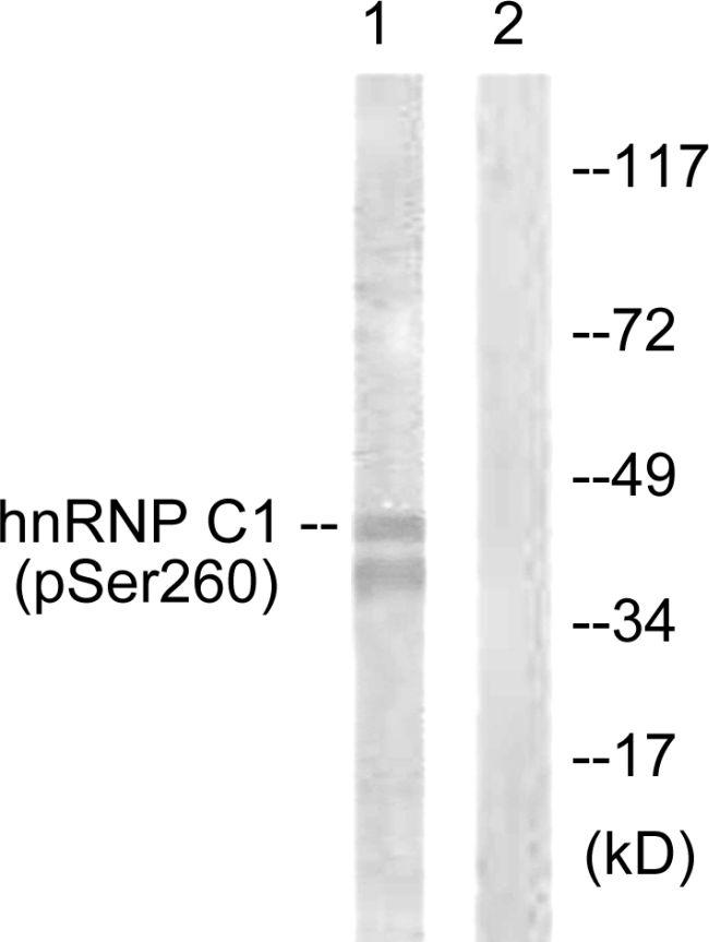Phospho-hnRNP C (Ser260) Antibody (PA5-38589) in Western Blot