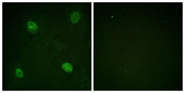 Phospho-hnRNP D (Ser83) Antibody (PA5-38591)
