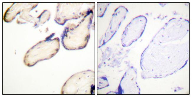 Phospho-Cdc37 (Ser13) Antibody (PA5-38597)