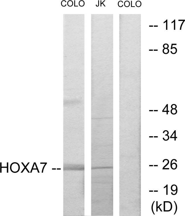 HOXA7 Antibody (PA5-38600)