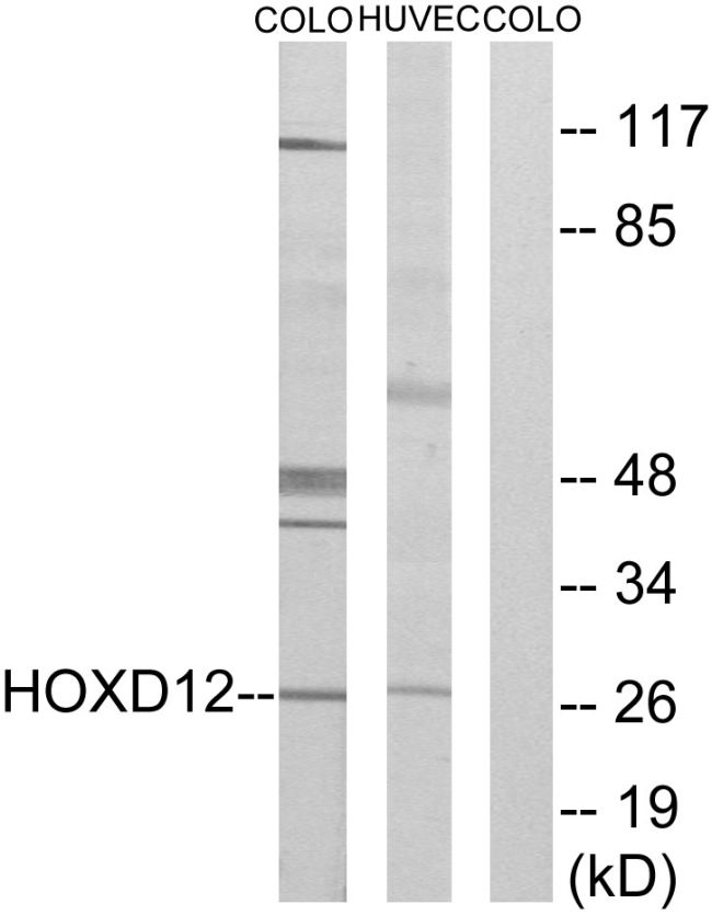 HOXD12 Antibody (PA5-38604) in Western Blot