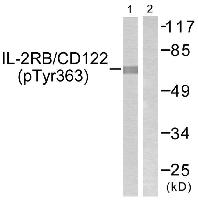 Phospho-CD122 (Tyr364) Antibody (PA5-38613)