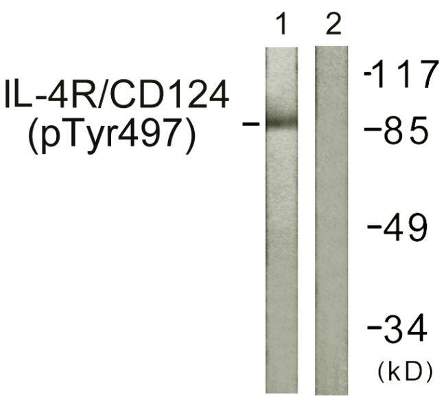 Phospho-IL4R (Tyr497) Antibody (PA5-38614) in Western Blot