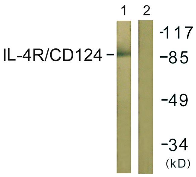 IL4R Antibody (PA5-38615) in Western Blot