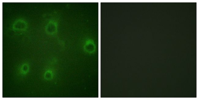 Phospho-CXCR2 (Ser347) Antibody (PA5-38620) in Immunofluorescence