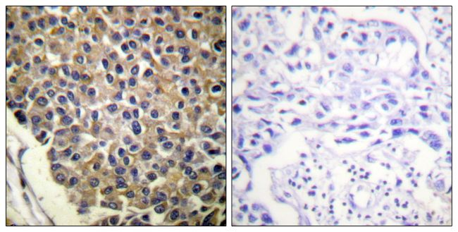 Phospho-CXCR2 (Ser347) Antibody (PA5-38620) in Immunohistochemistry (Paraffin)