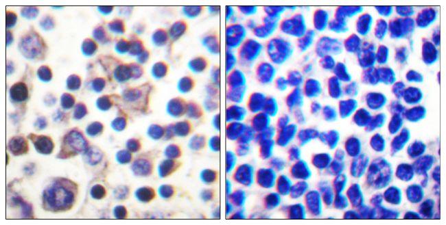 Phospho-IL9R (Ser519) Antibody (PA5-38621) in Immunohistochemistry (Paraffin)