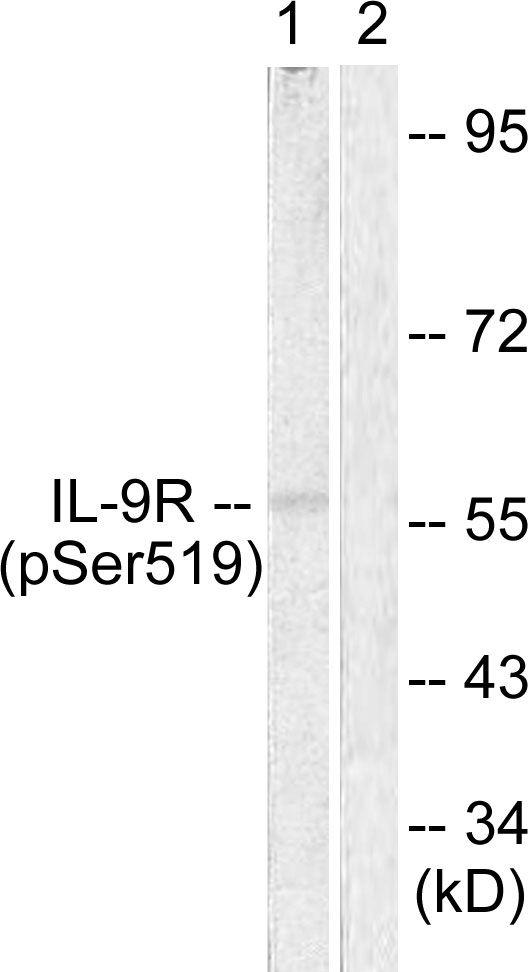 Phospho-IL9R (Ser519) Antibody (PA5-38621) in Western Blot