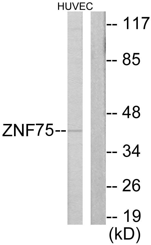 ZNF75D Antibody (PA5-38622) in Western Blot