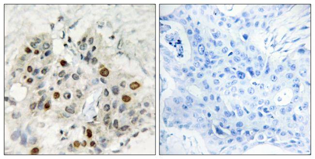 AFF1 Antibody (PA5-38623) in Immunohistochemistry (Paraffin)