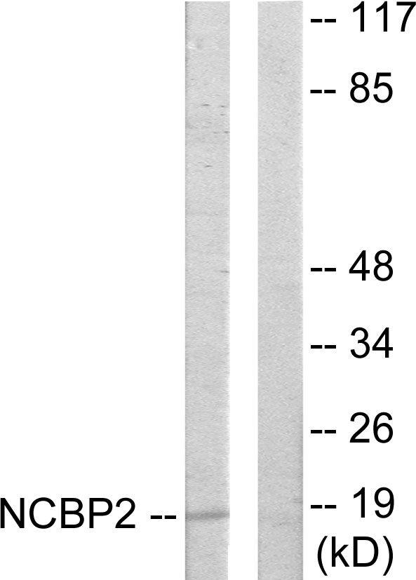 NCBP2 Antibody (PA5-38625) in Western Blot