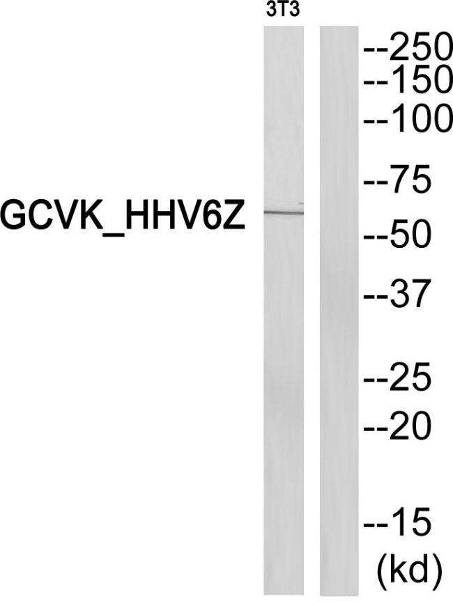 HSV Type 6 U69 Antibody (PA5-38627) in Western Blot