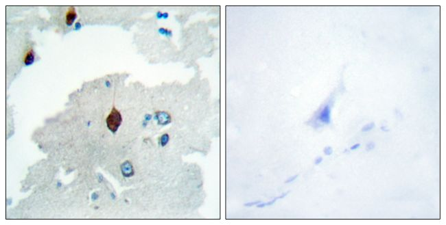 PTTG Antibody (PA5-38629) in Immunohistochemistry (Paraffin)