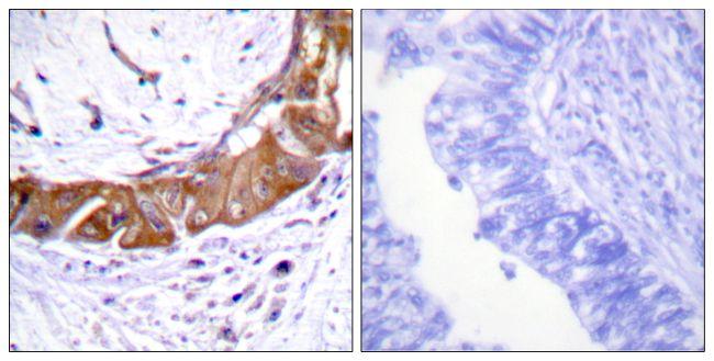Phospho-IRAK1 (Thr100) Antibody (PA5-38631)
