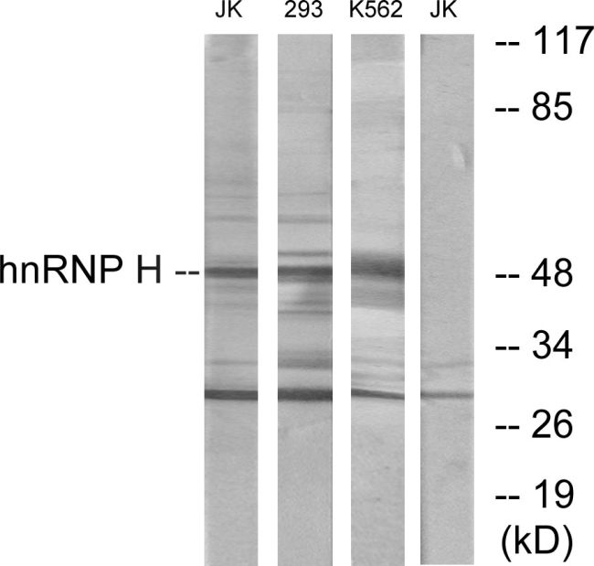 hnRNP H2 Antibody (PA5-38632) in Western Blot
