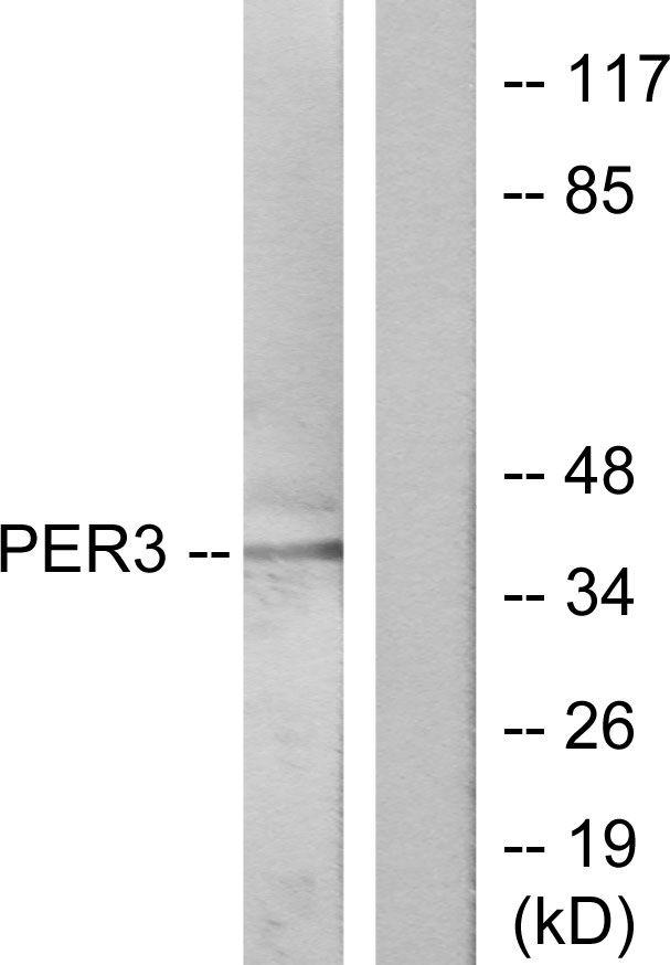 PER3 Antibody (PA5-38634) in Western Blot