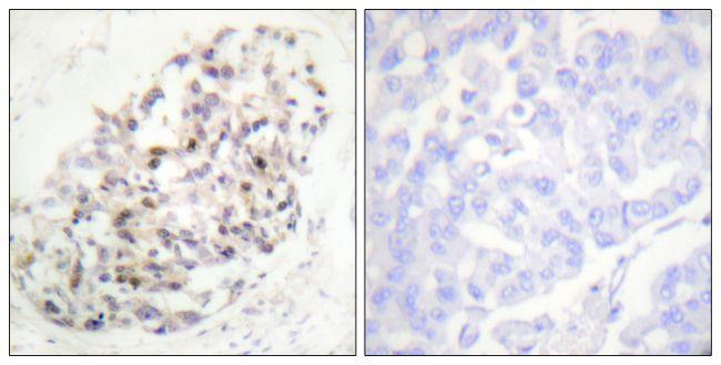 KIF20A Antibody (PA5-38648) in Immunohistochemistry (Paraffin)