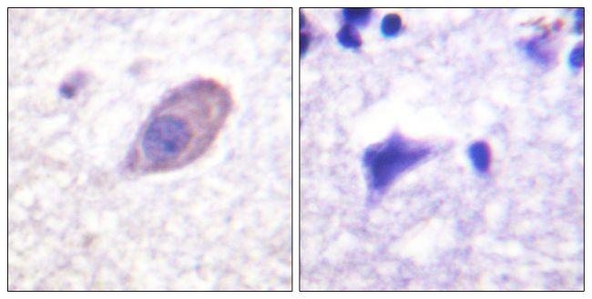 KCNJ16 Antibody (PA5-38650) in Immunohistochemistry (Paraffin)