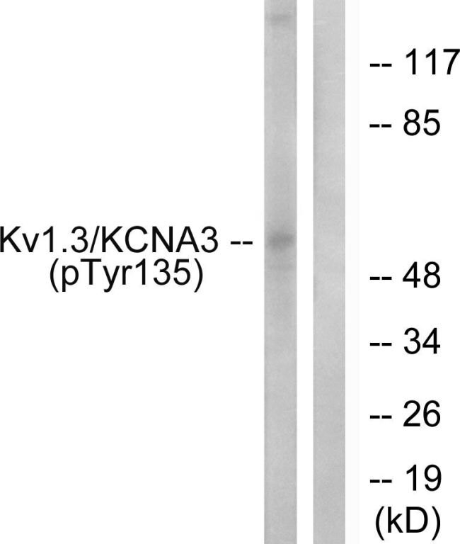 Phospho-KCNA3 (Tyr135) Antibody (PA5-38655) in Western Blot