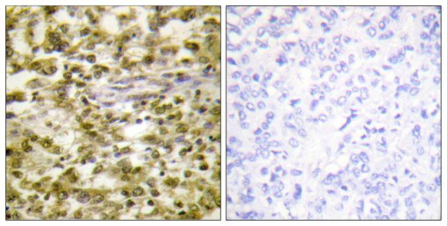CSB Antibody (PA5-38656) in Immunohistochemistry (Paraffin)