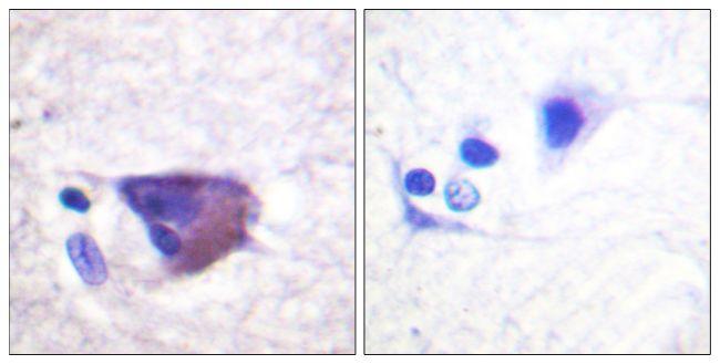 Phospho-KCNB1 (Ser567) Antibody (PA5-38657) in Immunohistochemistry (Paraffin)