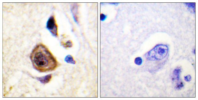KCNC4 Antibody (PA5-38658) in Immunohistochemistry (Paraffin)