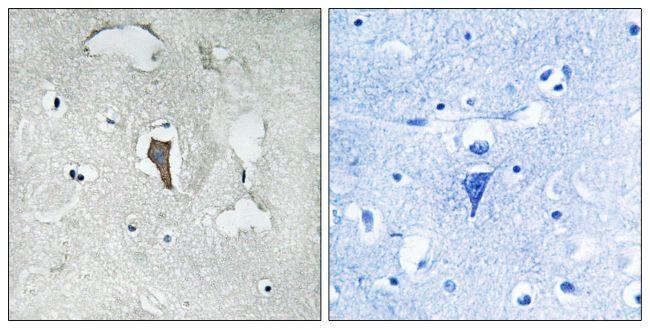 Phospho-KCND2 (Ser616) Antibody (PA5-38659)