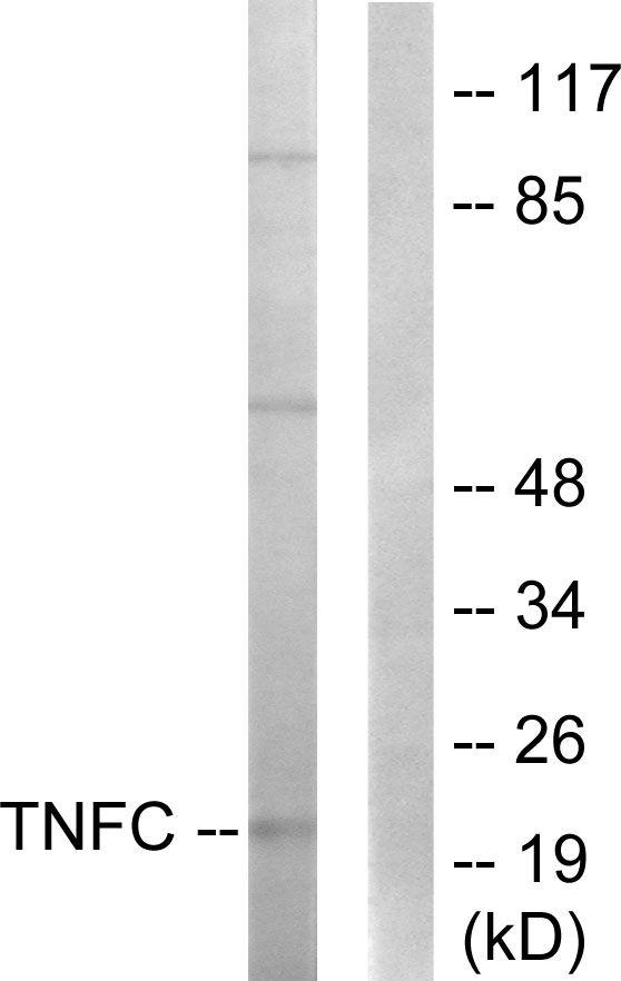LTB Antibody (PA5-38660) in Western Blot
