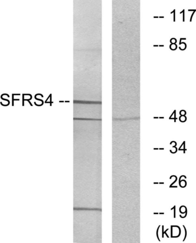 SRSF4 Antibody (PA5-38663)