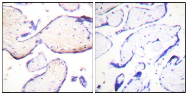 Phospho-Ezrin/Radixin/Moesin (Thr558) Antibody (PA5-38679) in Immunohistochemistry (Paraffin)