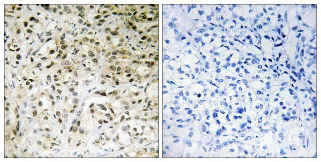 TAF5 Antibody (PA5-38685) in Immunohistochemistry (Paraffin)