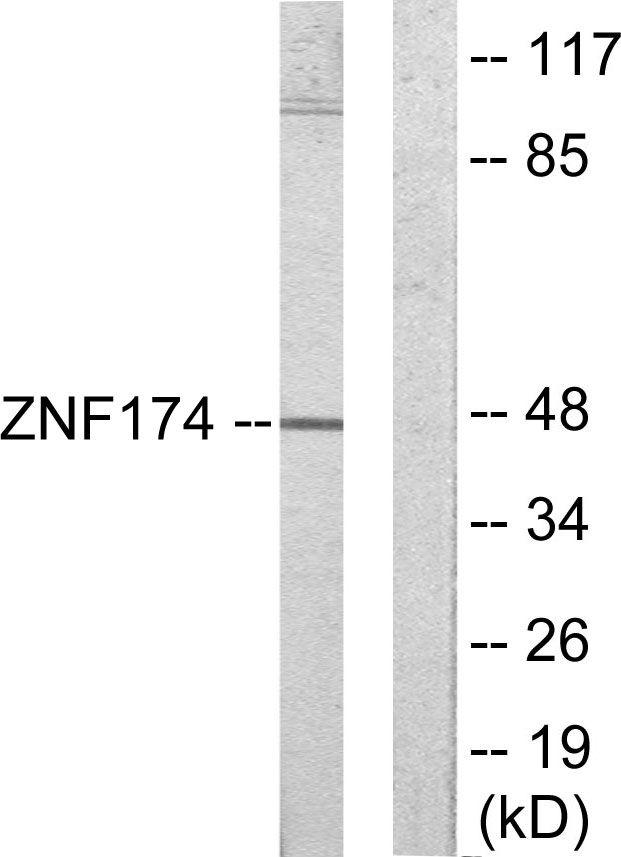 ZNF174 Antibody (PA5-38689) in Western Blot