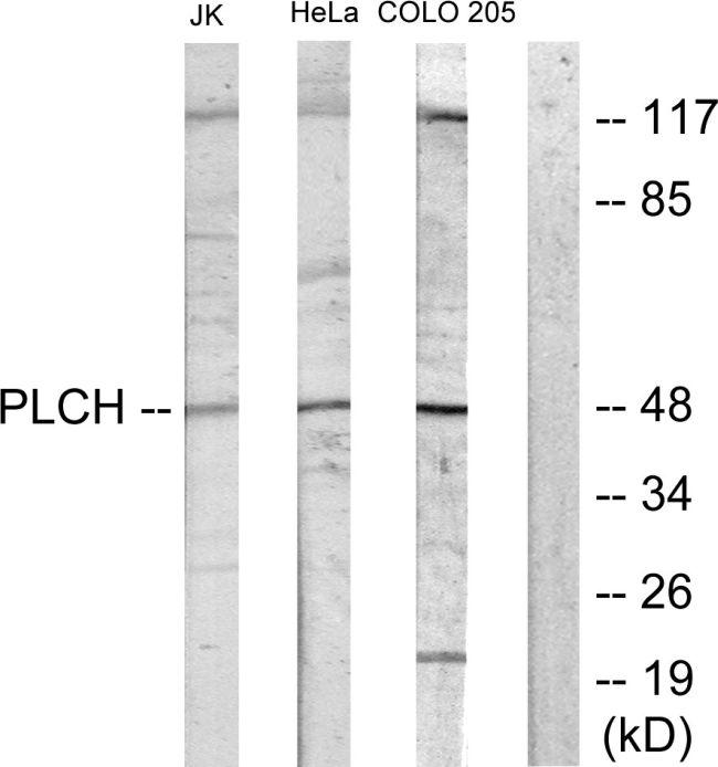 AGPAT9 Antibody (PA5-38698) in Western Blot