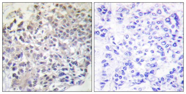 RAPGEF1 Antibody (PA5-38706) in Immunohistochemistry (Paraffin)