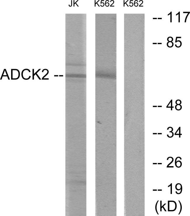ADCK2 Antibody (PA5-38717)