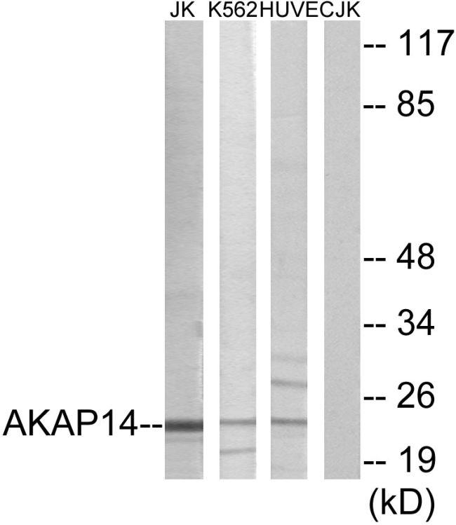 AKAP14 Antibody (PA5-38721) in Western Blot