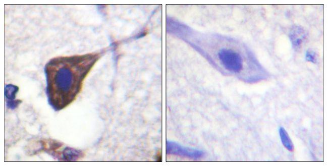 Phospho-beta-2 Adrenergic Receptor (Ser346) Antibody (PA5-38728) in Immunohistochemistry (Paraffin)
