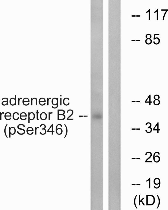 Phospho-beta-2 Adrenergic Receptor (Ser346) Antibody (PA5-38728) in Western Blot