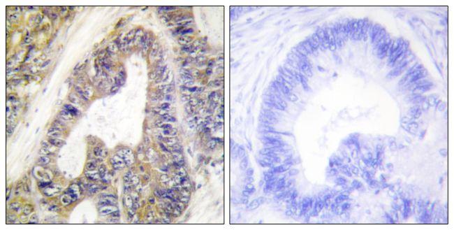 EPS8L1 Antibody (PA5-38746)