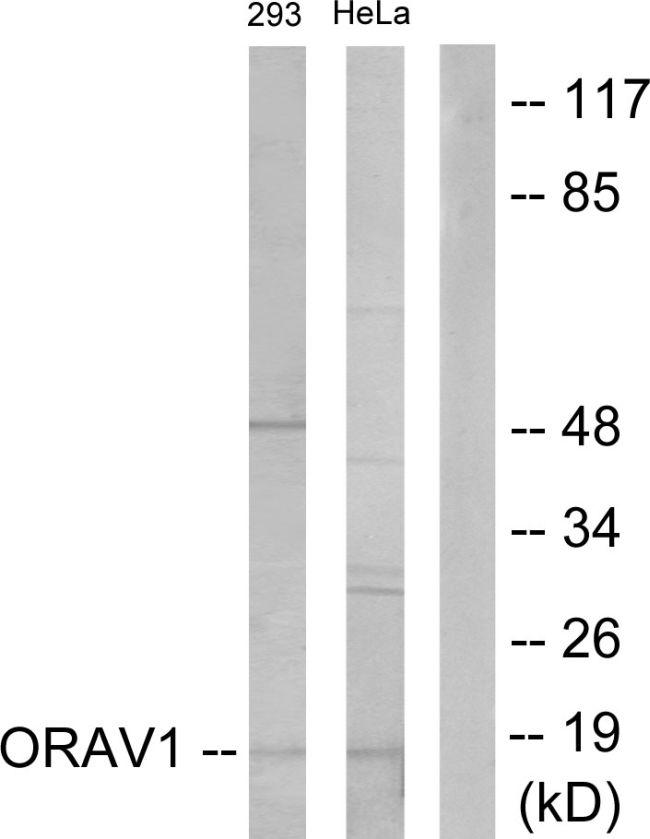 ORAOV1 Antibody (PA5-38748) in Western Blot