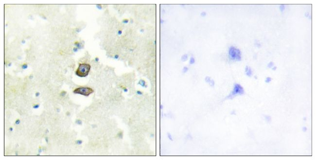 BRI3BP Antibody (PA5-38752)