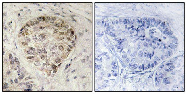 Phospho-CENTB1 (Ser554) Antibody (PA5-38753)