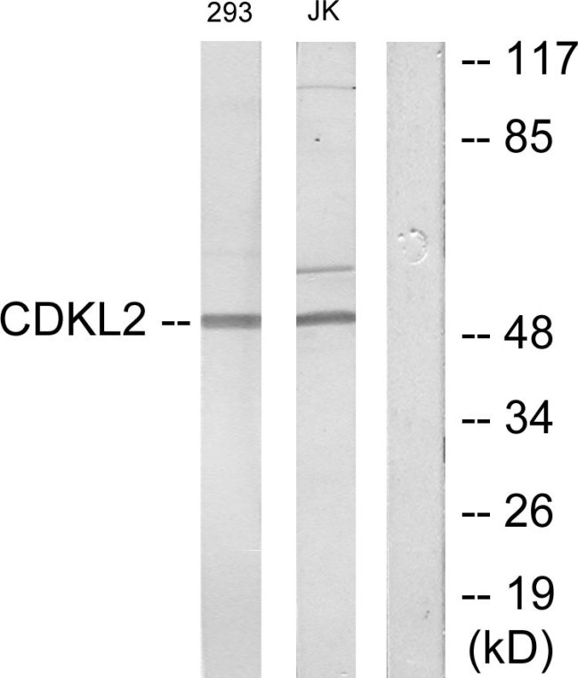 CDKL2 Antibody (PA5-38754)