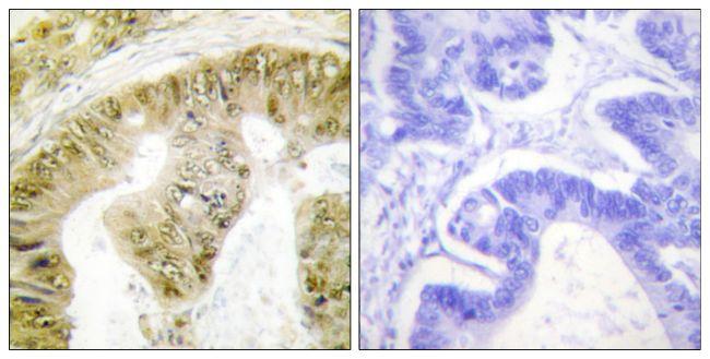 Phospho-FANCA (Ser1149) Antibody (PA5-38763) in Immunohistochemistry (Paraffin)