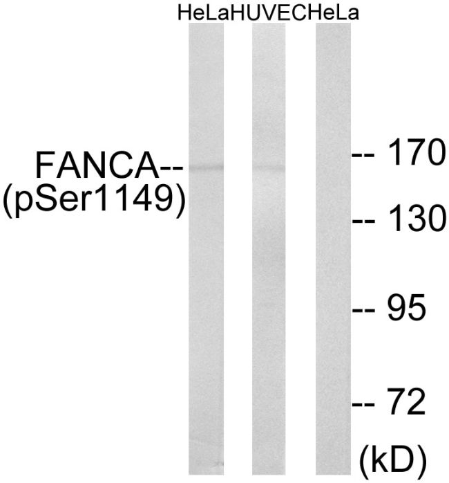 Phospho-FANCA (Ser1149) Antibody (PA5-38763) in Western Blot
