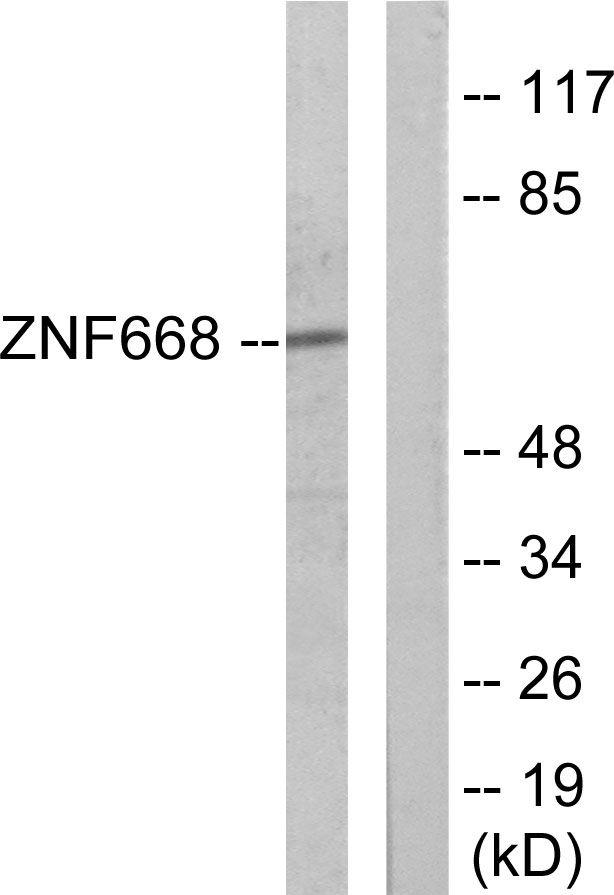 ZNF668 Antibody (PA5-38764) in Western Blot