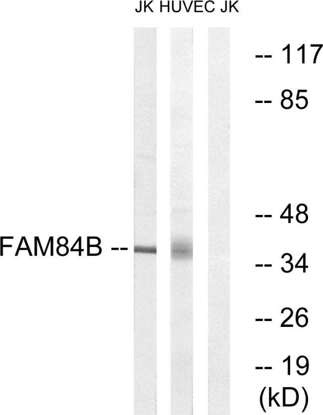 FAM84B Antibody (PA5-38765) in Western Blot